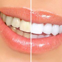 Dlaczego zęby ciemnieją